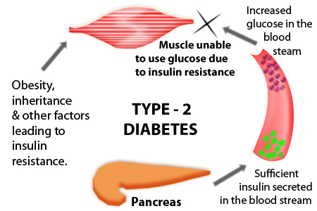 diabetes type 2 causes, symptoms and treatment, Human Body