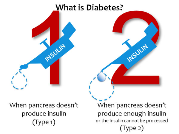 Types Of Diabetes - Diabetes Care Information