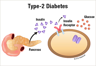Type 2 Diabetes Chart